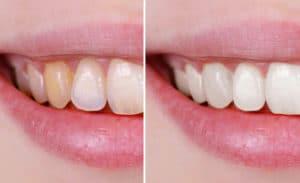 come togliere le macchie dai denti