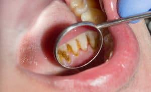 come togliere tartaro denti senza dentista