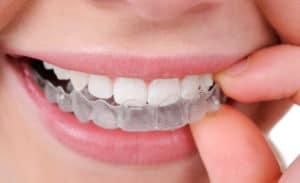 mascherine sbiancanti denti